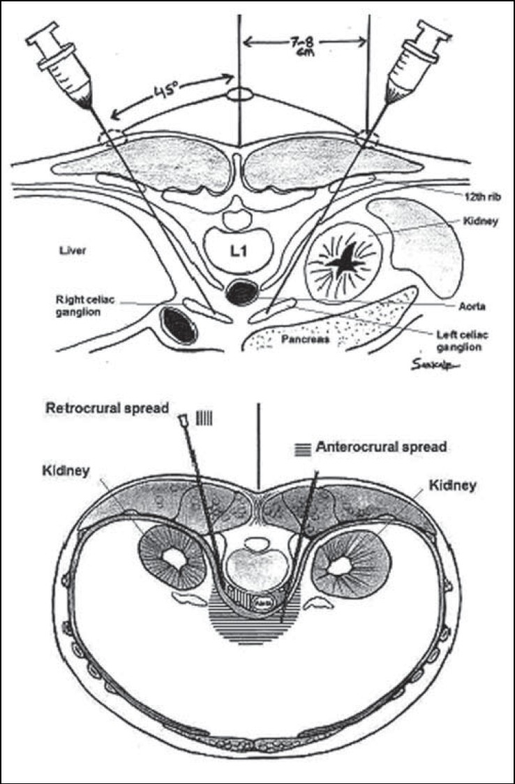 Figure 4: Cross-sectional views demonstrating the anatomy of celiac plexus with surrounding structures and the needle path while performing percutaneous celiac plexus block from a posterior approach. Image on right shows the spread of injectate in relation to the diaphragm, anterior (anterocrural) and posterior (retrocrural) spread