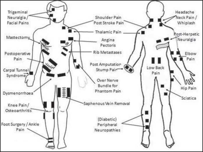 Transcutaneous Electrical Nerve Stimulation Tens A