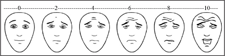 Figure 3: Faces pain scale - revised