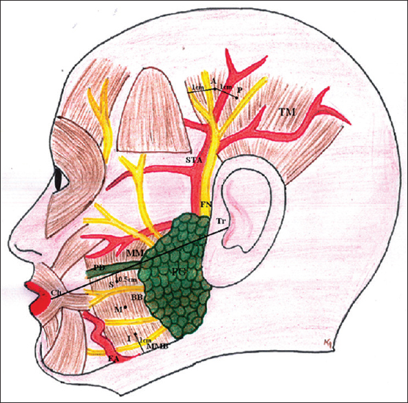 Effect of botulinum Toxin-A in myofascial pain in