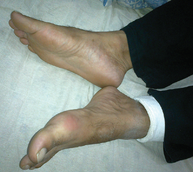 Gout as a consequence of bone healing: A diagnostic dilemma