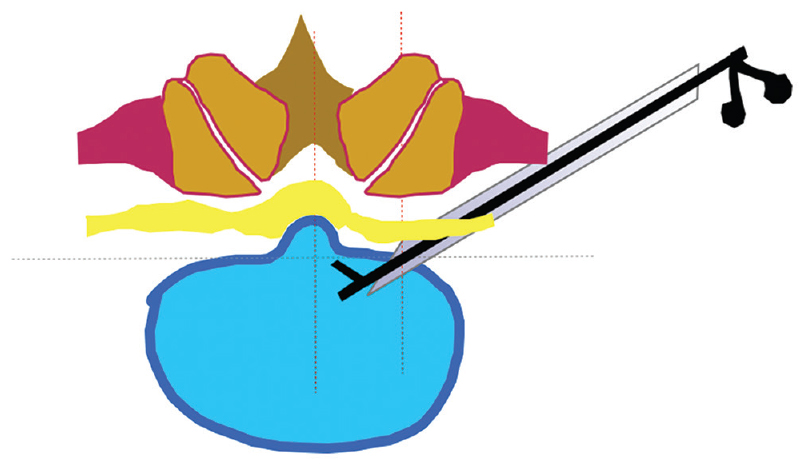 Figure 3: Posterolateral trajectory unable to reach the central herniationposition