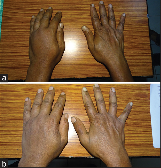 Figure 4: (a) Complex regional pain syndrome of left hand, premirror therapy. (b) Complex regional pain syndrome of left hand, post (2 weeks) mirror therapy