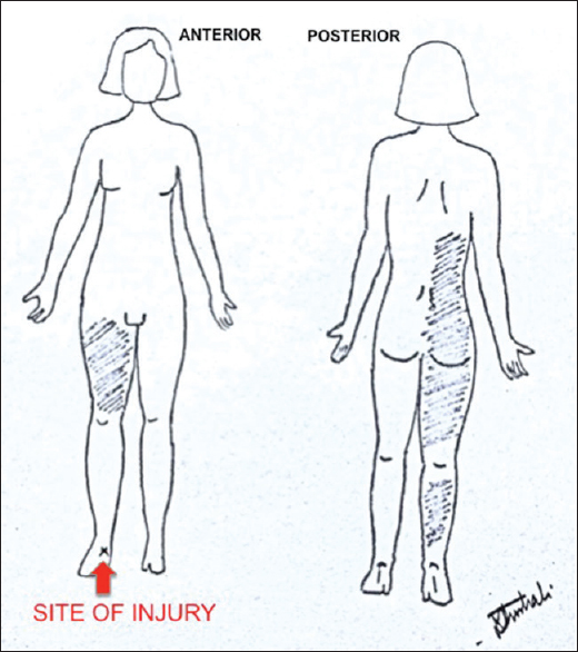 Figure 1: Pain chart of the patient at the time of presentation with site of injury (red arrow)