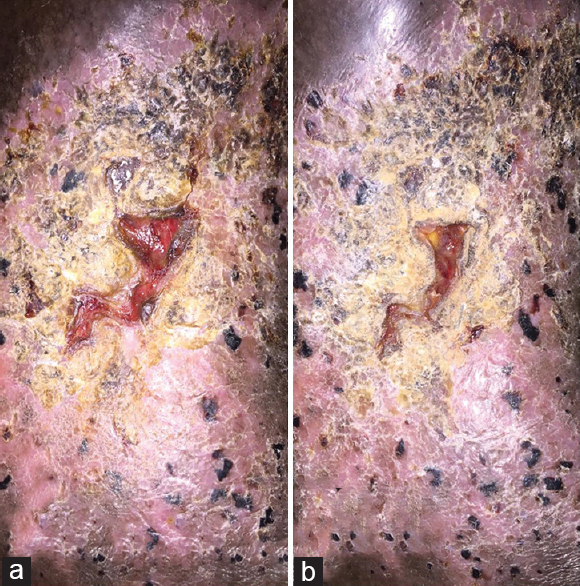 Figure 1: a) Non healing ulcer; b) Healing ulcer post procedure. Note that the patient's pain was relieved completely but ulcer didn't heal completely so he was referred to the vascular surgeon for varicose vein management