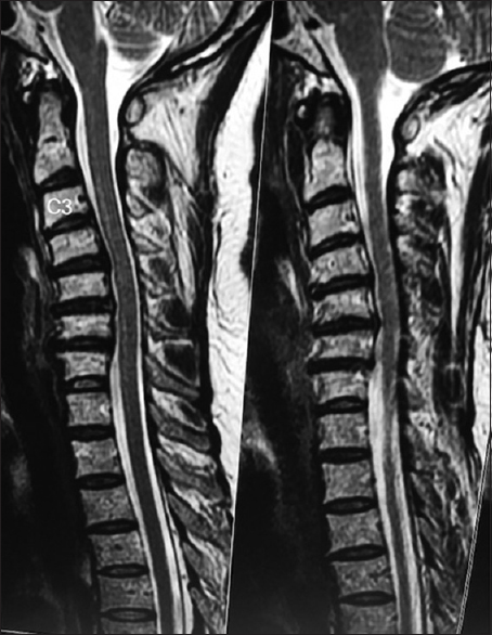 Increased neuropathic pain following cervical epidural