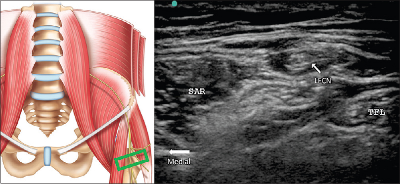 Figure 1: The fat-fill groove between sartorius (SAR) and tensor fascia lata. Within this groove, the lateral femoral cutaneous nerve can be easily identified. The left diagram showed the position of the ultrasound probe which is four-finger breadth distal to the anterior superior iliac spine. Reprinted with permission from Philip Peng Educational Series