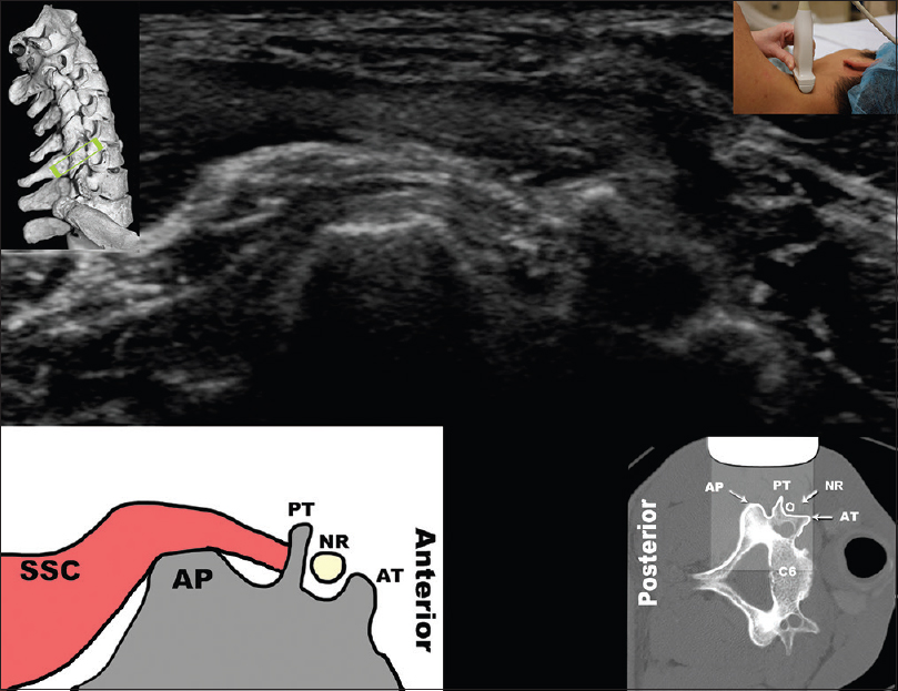 Figure 14: Transverse scan of the cervical spine at the level of C6 for needle placement. The centroid of the articular pillar forms a distinct flat hyperechoic line and constitutes the target for cervical medial branch blocks. The semispinalis capitis muscle inserts on the posterior tubercle of the transverse process and courses over the AP. Further anterior, nerve root and anterior tubercle can be seen. A computed tomography overlay of the same bony landmarks is depicted in the right lower inset. When performing a cervical medial branch block, the injectate should be deposited along the periosteum of the articular pillar, beneath the SSC. Reprinted with permission from Dr. Rod Finalyson and Philip Peng Educational Series