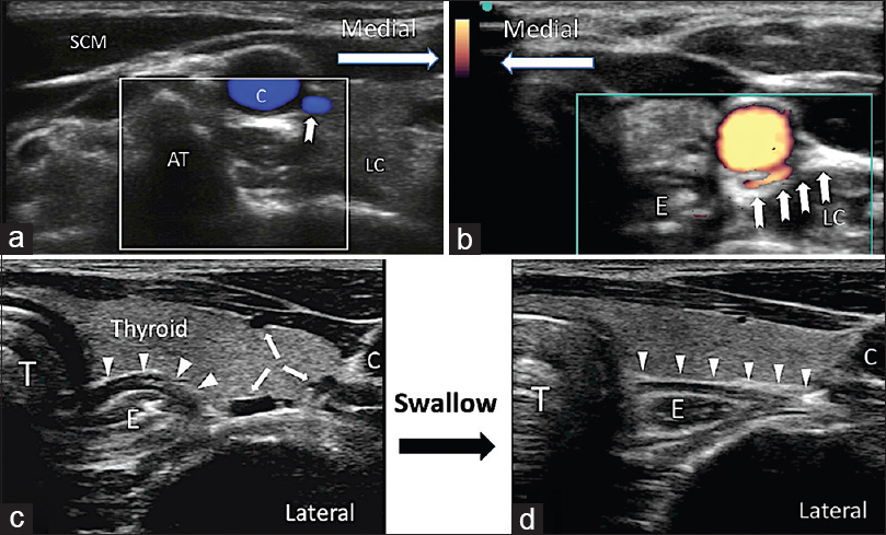 Figure 3: Top left, right figures and lower left figure showed different aberrant vessels (bold arrows) at the level of C6. Lower two figures showed the presence of esophagus (E) outlined by arrowheads. Reprinted with permission from Philip Peng Educational Series