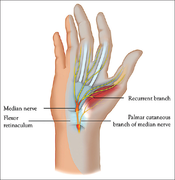 Figure 5: Carpal tunnel. Please note the recurrent branch and palmar cutaneous branch of median nerve. Reprinted with permission from Philip Peng Educational Series
