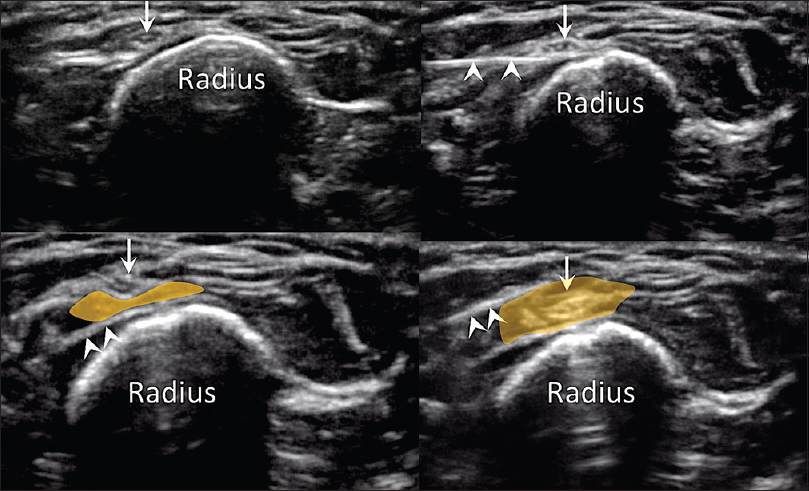Figure 8: Top left: The superficial branch of radial nerve (arrow) in the subcutaneous plane superficial to the radius. Top right: A needle (arrowheads) is inserted deep to the nerve. Lower left: Using dextrose solution (yellow), the nerve is separated from the periosteum of the radius. Lower right: Insertion of the needle superficial to the nerve and with further hydrodissection of the nerve with dextrose solution, the nerve is now free from adhesion from the surrounding tissue. Reprinted with permission from Philip Peng Educational Series